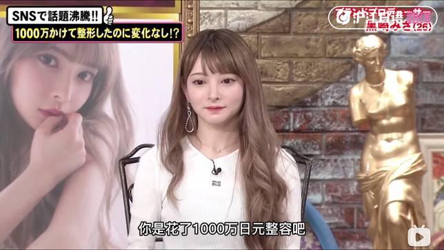 在節目上,misa晒出了整形前後的對比照
